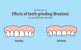 Effects of teeth grinding