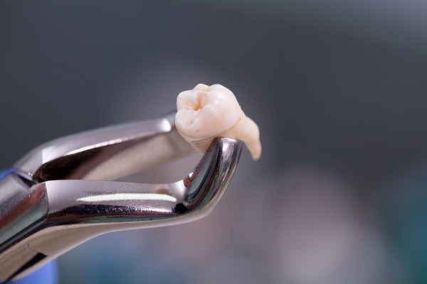 Perth dentist removing tooth
