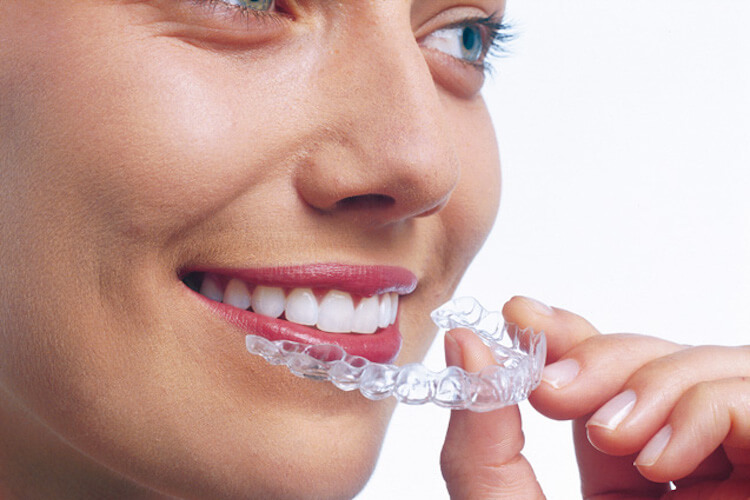 Get Invisalign Perth at 123 Dental