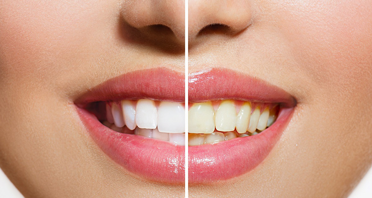 Zoom Vs Take Home Teeth Whitening Kits