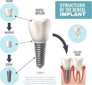 Structure of dental implant
