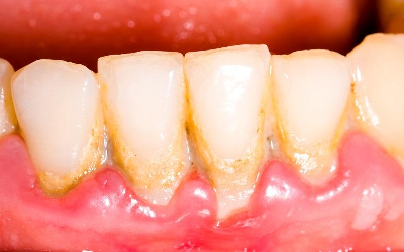 Dental tartar (a result of a build up of plaque)