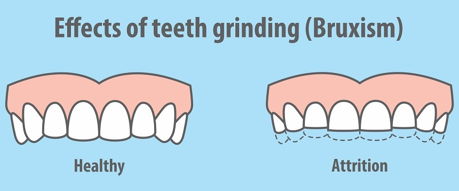 The effects of teeth grinding (bruxism)