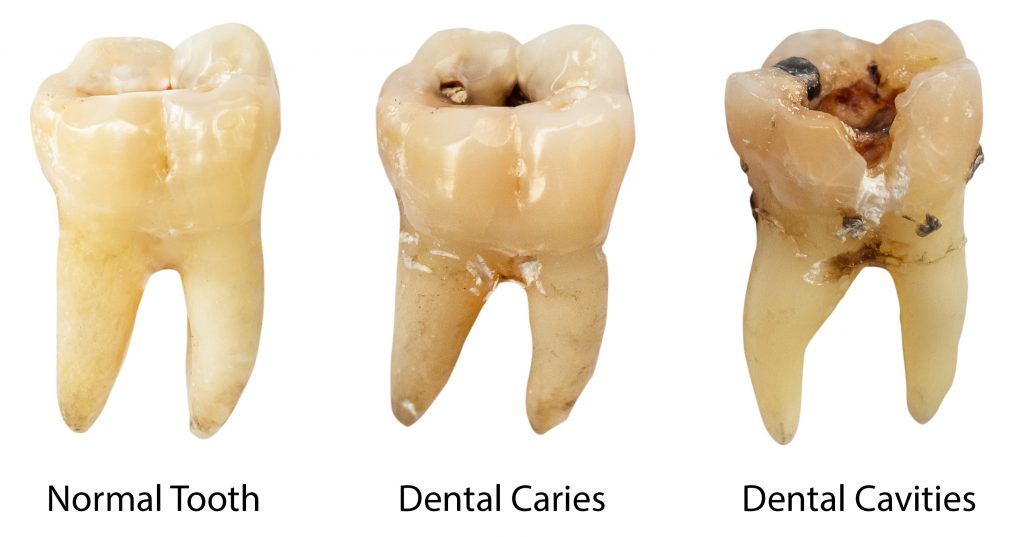 Various stages of tooth decay