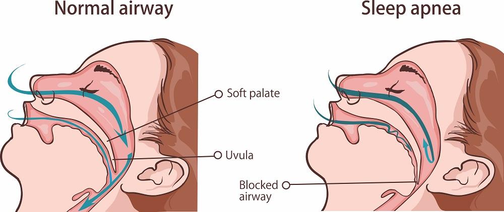 How sleep apnea occurs