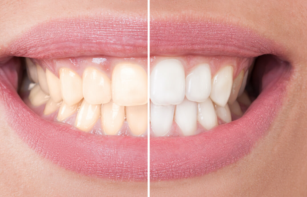 The real colour of newly whitened teeth typically reveals itself in a couple of days.