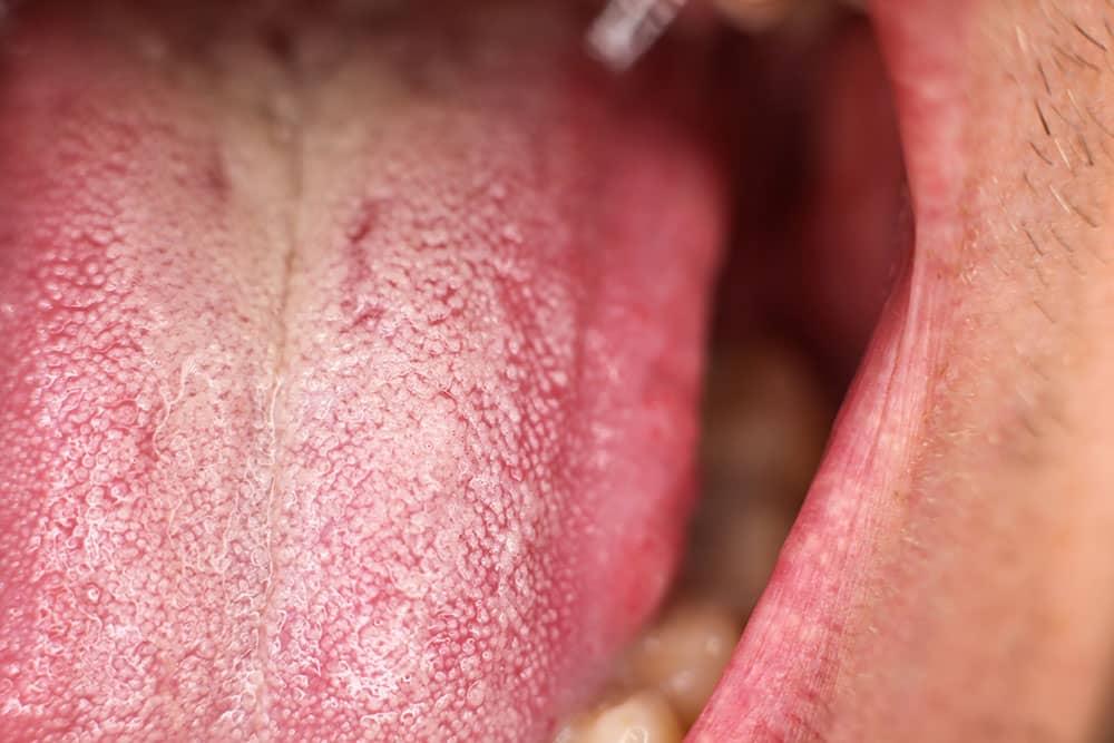 unhealthy tongue