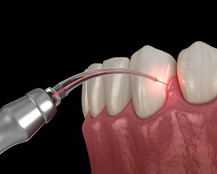 Laser dentistry example