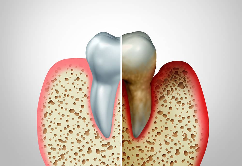 comparison between health and diseased gum