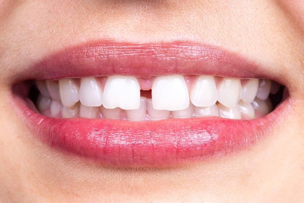 teeth gap female