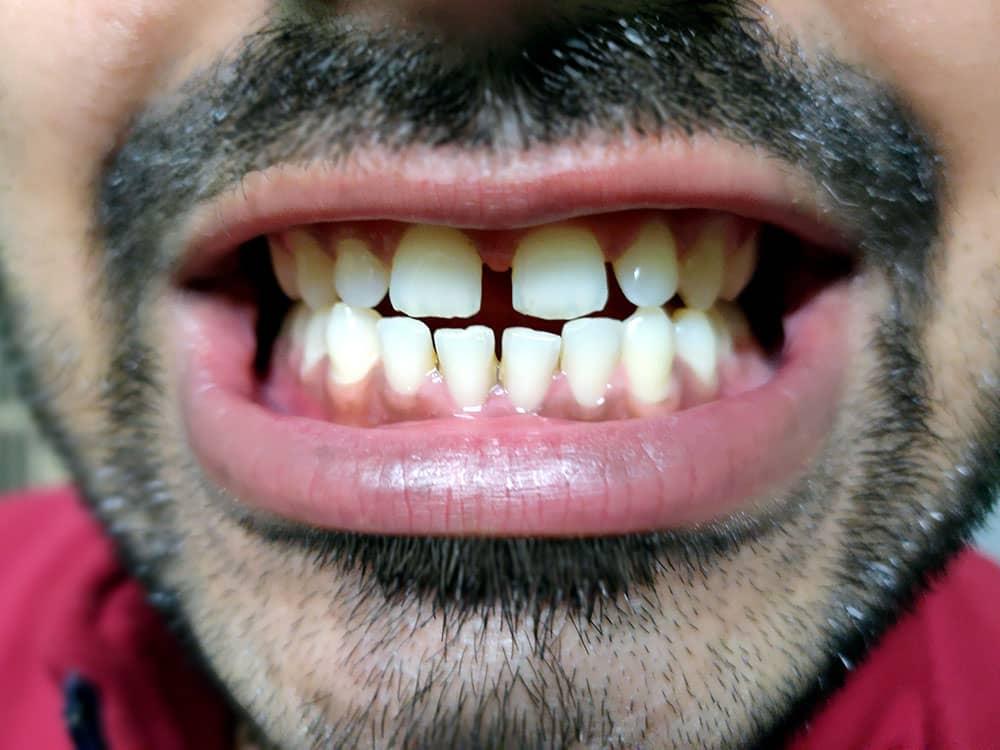 male teeth gaps
