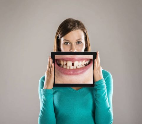 lady with image of teeth